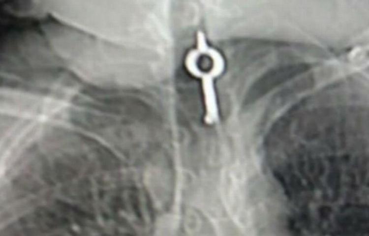 Reo se tragó una llave para fugarse de cárcel