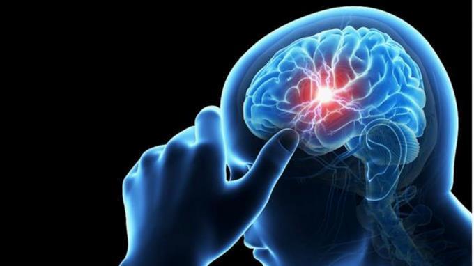 El VIH puede afectar el cerebro a pesar del tratamiento antirretroviral