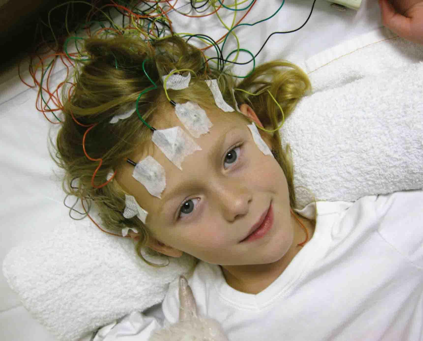 Casos de niños con epilepsia se deben a problemas ocurren en el embarazo