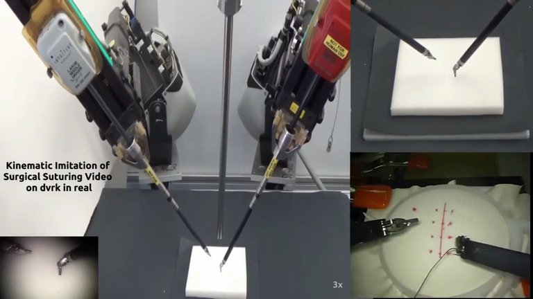 Entrenan a un robot con videos de cirugías para que aprenda a suturar heridasEs parte de un proyecto
